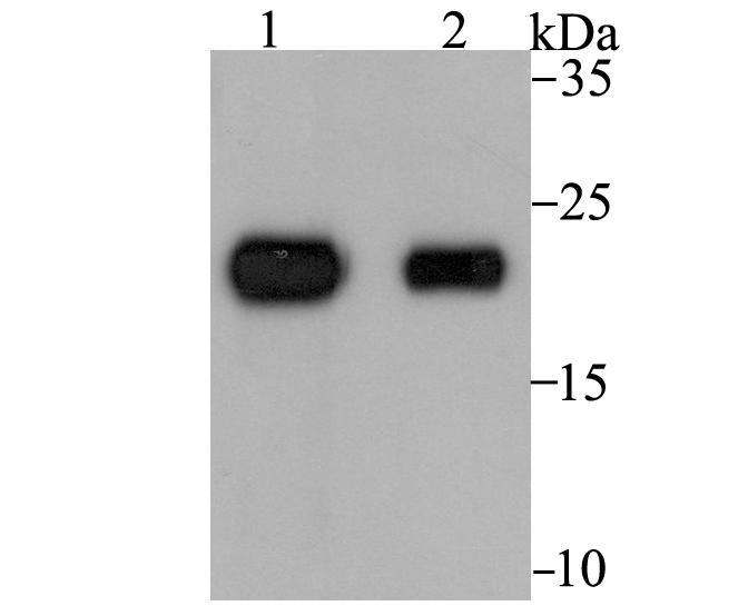 Western blot analysis of Tetranectin on rat skin (1) and human skin (2) tissue lysates using anti-Tetranectin antibody at 1/1,000 dilution.