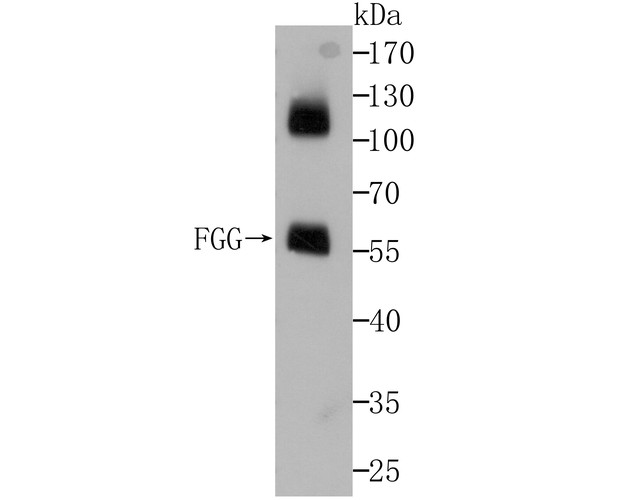Western blot analysis of Fibrinogen gamma chain on human plasma using anti-Fibrinogen gamma chain at 1/5,000 dilution.