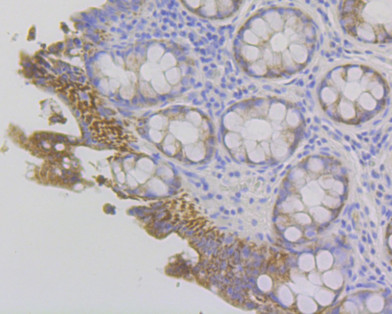 Immunohistochemical analysis of paraffin-embedded human colon tissue using anti-Fibrinogen gamma chain antibody. Counter stained with hematoxylin.