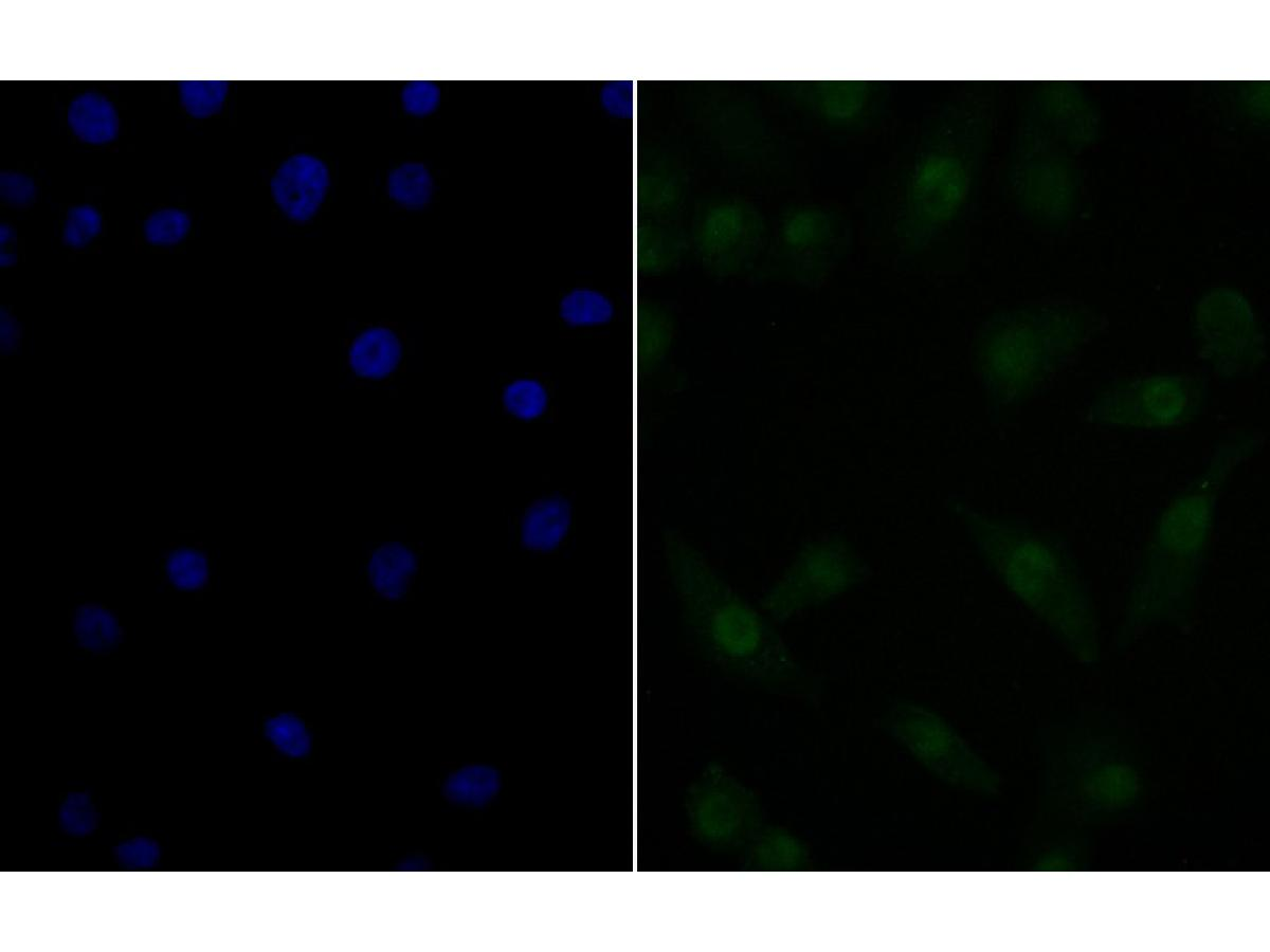 ICC staining Nucleostemin in A549 cells (green). The nuclear counter stain is DAPI (blue). Cells were fixed in paraformaldehyde, permeabilised with 0.25% Triton X100/PBS.