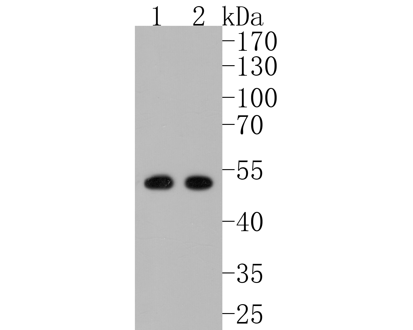 Western blot analysis of PICK1 on different lysates. Proteins were transferred to a PVDF membrane and blocked with 5% BSA in PBS for 1 hour at room temperature. The primary antibody (ET7108-60, 1/500) was used in 5% BSA at room temperature for 2 hours. Goat Anti-Rabbit IgG - HRP Secondary Antibody (HA1001) at 1:5,000 dilution was used for 1 hour at room temperature.<br /> Positive control: <br /> Lane 1: SK-Br-3 cell lysate<br /> Lane 2: 293 cell lysate