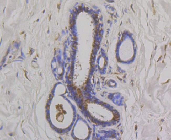 Immunohistochemical analysis of paraffin-embedded human breast cancer tissue using anti-OS9 antibody. Counter stained with hematoxylin.
