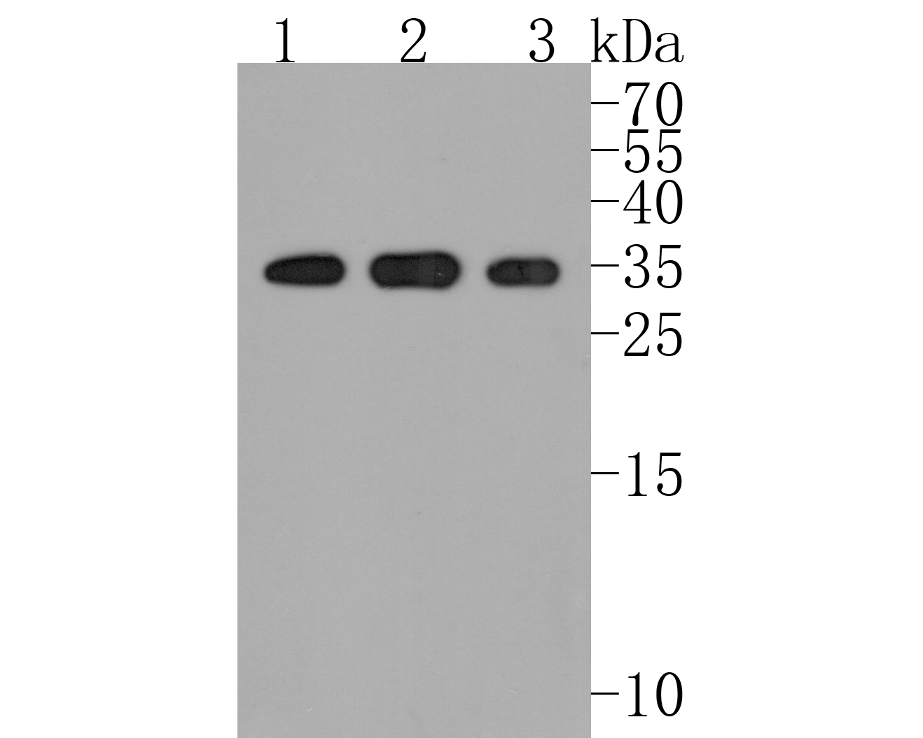 Western blot analysis of STUB1 on different lysates. Proteins were transferred to a PVDF membrane and blocked with 5% BSA in PBS for 1 hour at room temperature. The primary antibody (ET7108-65, 1/500) was used in 5% BSA at room temperature for 2 hours. Goat Anti-Rabbit IgG - HRP Secondary Antibody (HA1001) at 1:5,000 dilution was used for 1 hour at room temperature.<br /> Positive control: <br /> Lane 1: 293 cell lysate<br /> Lane 2: MCF-7 cell lysate<br /> Lane 3: SK-Br-3 cell lysate
