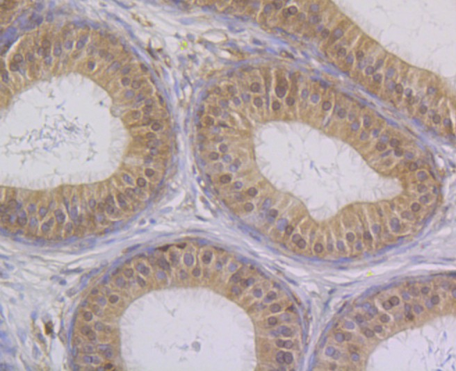 Immunohistochemical analysis of paraffin-embedded rat epididymis tissue using anti-STUB1 antibody. The section was pre-treated using heat mediated antigen retrieval with Tris-EDTA buffer (pH 8.0-8.4) for 20 minutes.The tissues were blocked in 5% BSA for 30 minutes at room temperature, washed with ddH2O and PBS, and then probed with the primary antibody (ET7108-65, 1/50) for 30 minutes at room temperature. The detection was performed using an HRP conjugated compact polymer system. DAB was used as the chromogen. Tissues were counterstained with hematoxylin and mounted with DPX.