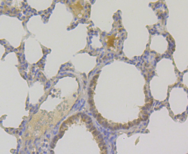 Immunohistochemical analysis of paraffin-embedded mouse lung tissue using anti-TNPO3 antibody. Counter stained with hematoxylin.