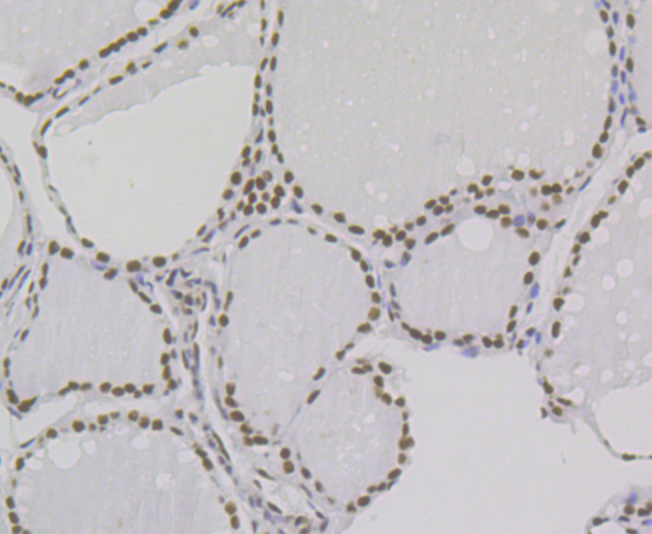 Immunohistochemical analysis of paraffin-embedded human thyroid gland tissue using anti-Bub3 antibody. Counter stained with hematoxylin.
