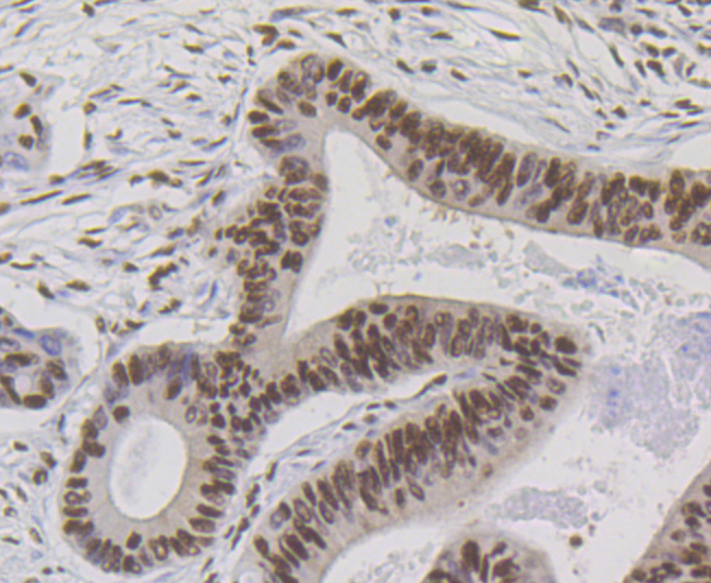 Immunohistochemical analysis of paraffin-embedded human colon cancer tissue using anti-Bub3 antibody. Counter stained with hematoxylin.
