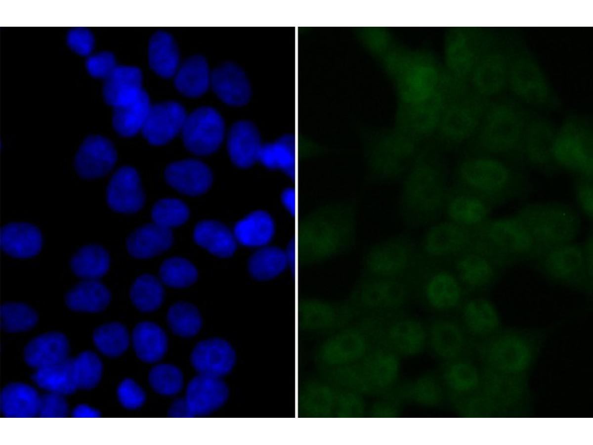 ICC staining BRD2 in 293T cells (green). The nuclear counter stain is DAPI (blue). Cells were fixed in paraformaldehyde, permeabilised with 0.25% Triton X100/PBS.