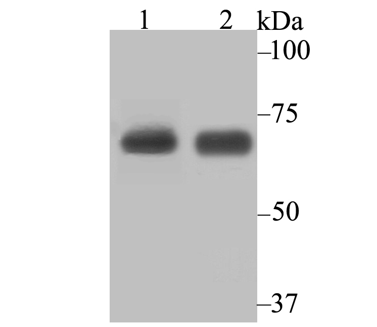 Western blot analysis of Lysyl tRNA synthetase on SiHa (1) and MCF-7 (2) cell lysate using anti-Lysyl tRNA synthetase antibody at 1/2,000 dilution.