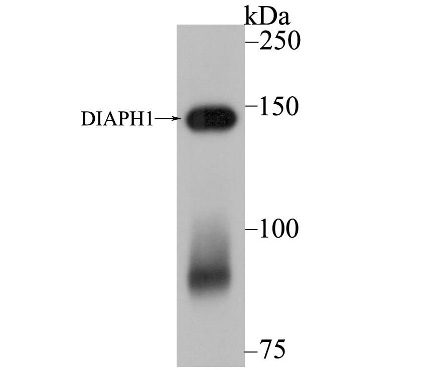 Western blot analysis of DIAPH1 on SiHa cell lysate using anti-DIAPH1 antibody at 1/5,000 dilution.