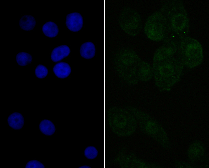 ICC staining NXF1 in LOVO cells (green). The nuclear counter stain is DAPI (blue). Cells were fixed in paraformaldehyde, permeabilised with 0.25% Triton X100/PBS.