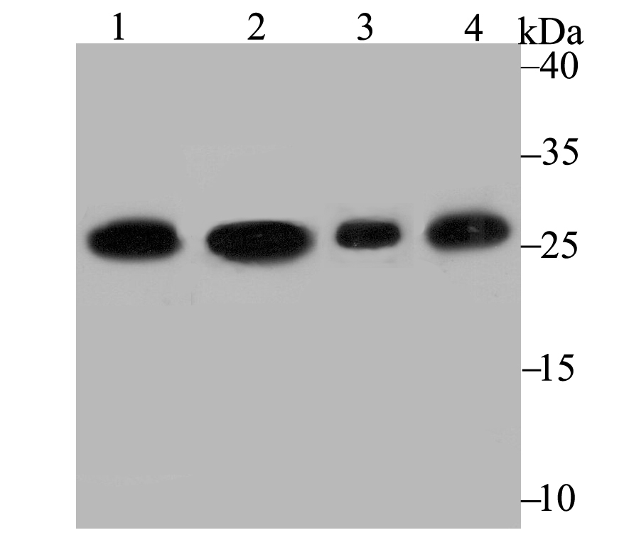 Western blot analysis of PGAM1 on different lysates using anti-PGAM1 antibody at 1/2,000 dilution.<br />  Positive control:<br />  Lane 1: A431   <br />         Lane 2: A549<br />  Lane 3: Rat brain  <br />     Lane 4: Mouse brain