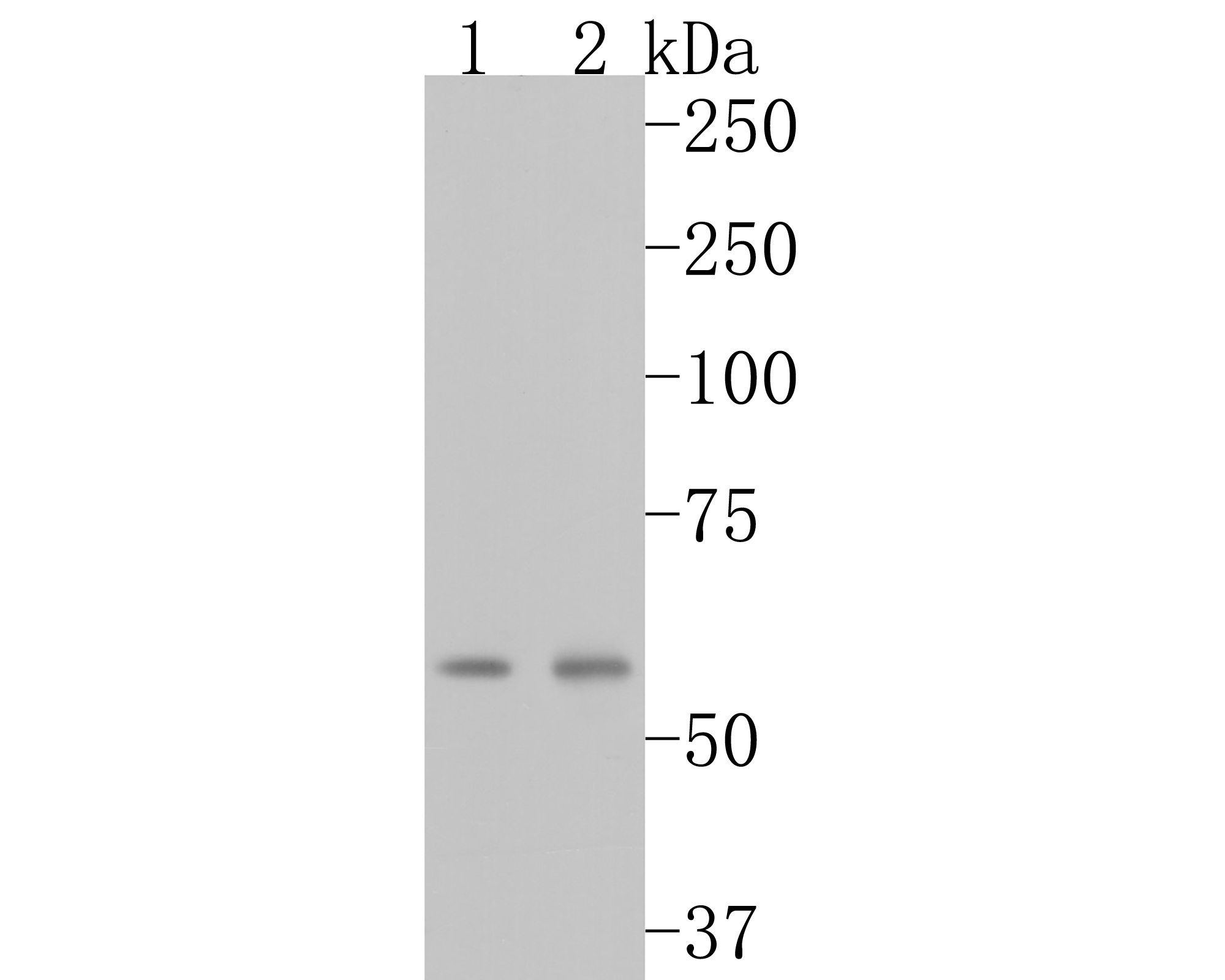 Western blot analysis of CBS on different lysates using anti-CBS antibody at 1/1,000 dilution.<br />  Positive control:<br />  Lane 1: 293   <br />               Lane 2: 293<br />  Lane 3: human liver tissue