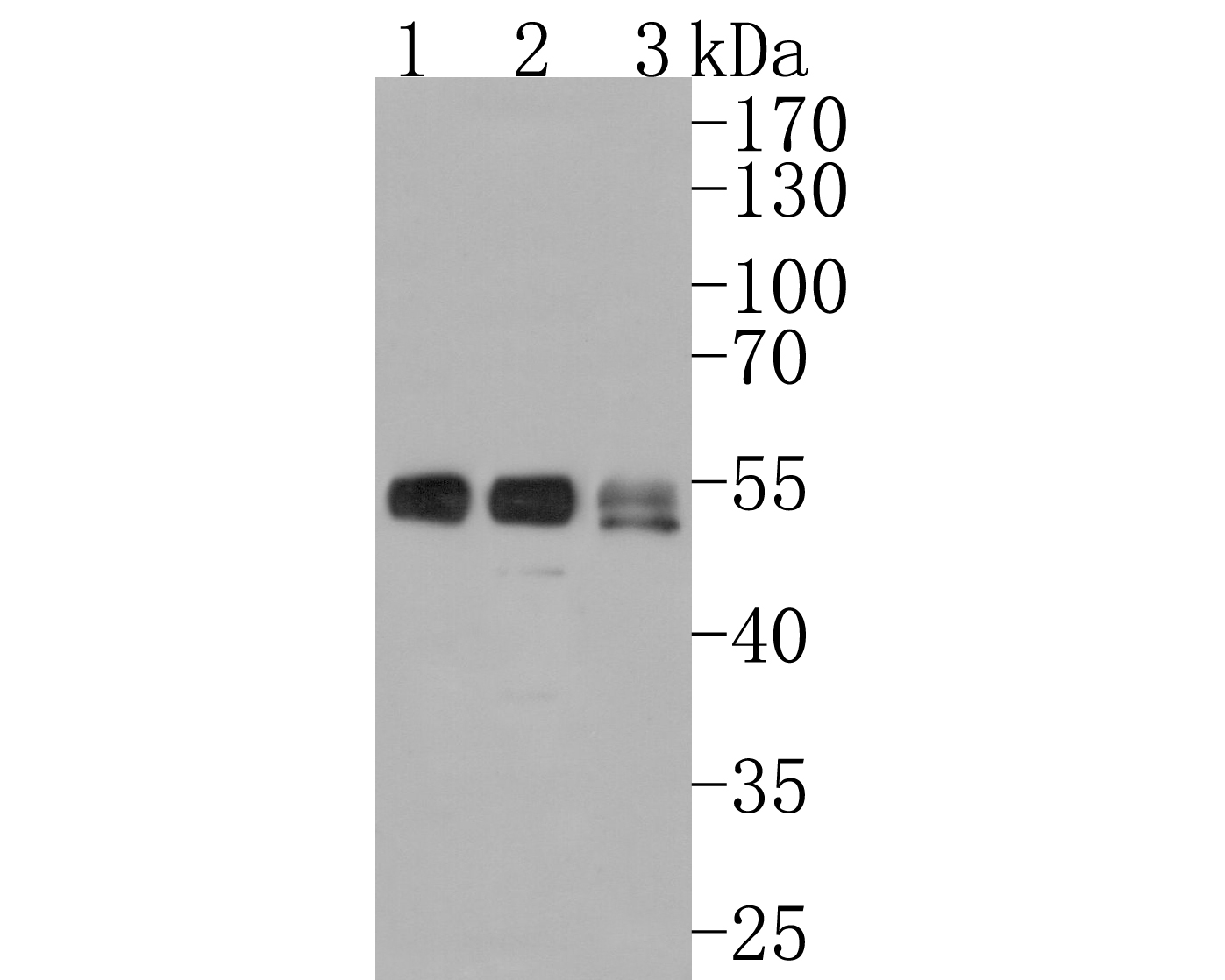 Western blot analysis of Lumican on different lysates using anti-Lumican antibody at 1/1,000 dilution. <br />  Positive control: <br />  Lane 1: Jurkat  <br />           Lane 2: 293T <br />  Lane 3: Human skin