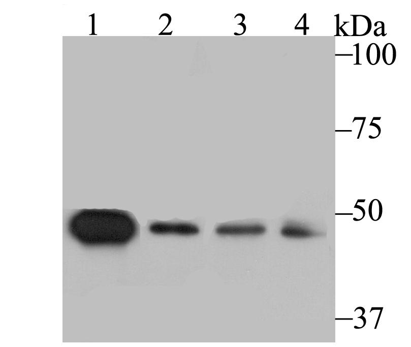 Western blot analysis of SFRP4 on different lysates using anti-SFRP4 antibody at 1/1,000 dilution.<br />  Positive control:<br />  Lane 1: Mouse testis <br />     Lane 2: A549<br />  Lane 3: HepG2 <br />            Lane 4: SH-SY-5Y