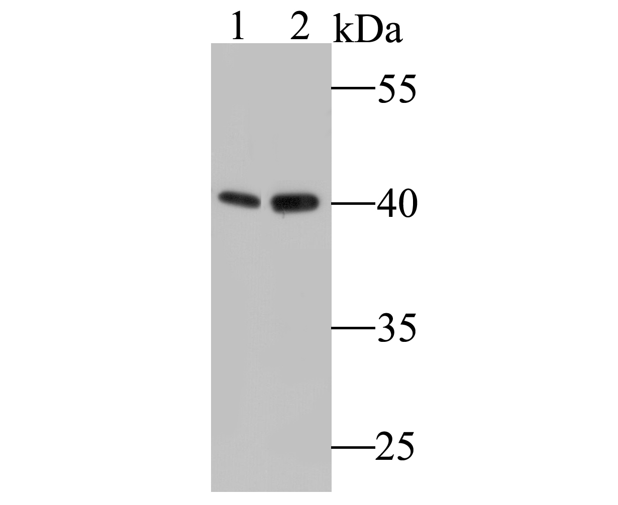 Western blot analysis of COPS3/CSN3 on different lysates. Proteins were transferred to a PVDF membrane and blocked with 5% BSA in PBS for 1 hour at room temperature. The primary antibody (ET7109-60, 1/500) was used in 5% BSA at room temperature for 2 hours. Goat Anti-Rabbit IgG - HRP Secondary Antibody (HA1001) at 1:5,000 dilution was used for 1 hour at room temperature.<br /> Positive control: <br /> Lane 1: Human skeletal muscle tissue lysate<br /> Lane 2: Rat bone marrow lysate