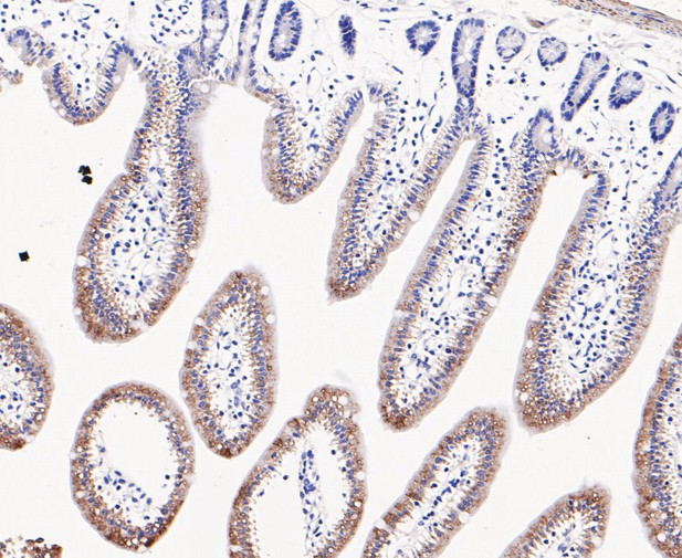 Immunohistochemical analysis of paraffin-embedded mouse small intestine tissue using anti-Lysophospholipase 1 antibody. The section was pre-treated using heat mediated antigen retrieval with Tris-EDTA buffer (pH 8.0-8.4) for 20 minutes.The tissues were blocked in 5% BSA for 30 minutes at room temperature, washed with ddH2O and PBS, and then probed with the primary antibody (ET7109-63, 1/200) for 30 minutes at room temperature. The detection was performed using an HRP conjugated compact polymer system. DAB was used as the chromogen. Tissues were counterstained with hematoxylin and mounted with DPX.