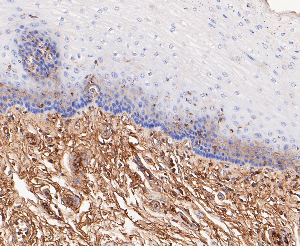 Immunohistochemical analysis of paraffin-embedded human esophagus tissue using anti-ACADM antibody. The section was pre-treated using heat mediated antigen retrieval with Tris-EDTA buffer (pH 8.0-8.4) for 20 minutes.The tissues were blocked in 5% BSA for 30 minutes at room temperature, washed with ddH2O and PBS, and then probed with the primary antibody (ET7109-74, 1/50) for 1 hour at room temperature. The detection was performed using an HRP conjugated compact polymer system. DAB was used as the chromogen. Tissues were counterstained with hematoxylin and mounted with DPX.