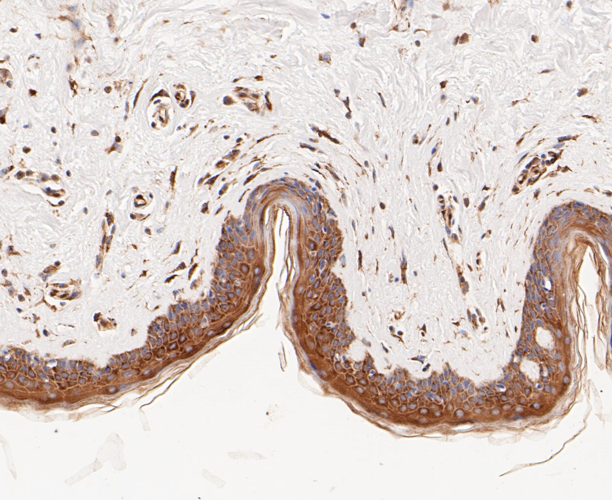 Immunohistochemical analysis of paraffin-embedded human skin tissue using anti-TCP1 alpha/CCTA antibody. The section was pre-treated using heat mediated antigen retrieval with Tris-EDTA buffer (pH 8.0-8.4) for 20 minutes.The tissues were blocked in 5% BSA for 30 minutes at room temperature, washed with ddH2O and PBS, and then probed with the primary antibody (ET7109-79, 1/50) for 30 minutes at room temperature. The detection was performed using an HRP conjugated compact polymer system. DAB was used as the chromogen. Tissues were counterstained with hematoxylin and mounted with DPX.