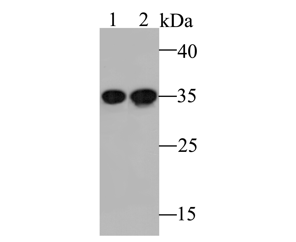Western blot analysis of PSMD14 on different lysates. Proteins were transferred to a PVDF membrane and blocked with 5% BSA in PBS for 1 hour at room temperature. The primary antibody (ET7109-85, 1/500) was used in 5% BSA at room temperature for 2 hours. Goat Anti-Rabbit IgG - HRP Secondary Antibody (HA1001) at 1:5,000 dilution was used for 1 hour at room temperature.<br /> Positive control: <br /> Lane 1: Human skin tissue lysate<br /> Lane 2: Rat bone marrow lysate