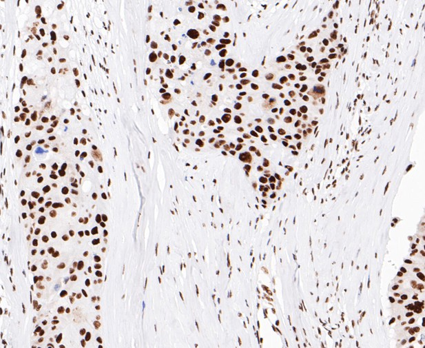 Immunohistochemical analysis of paraffin-embedded human breast cancer tissue using anti-EWSR1/EWS antibody. The section was pre-treated using heat mediated antigen retrieval with sodium citrate buffer (pH 6.0) for 20 minutes. The tissues were blocked in 5% BSA for 30 minutes at room temperature, washed with ddH2O and PBS, and then probed with the primary antibody (ET7109-94, 1/50)  for 30 minutes at room temperature. The detection was performed using an HRP conjugated compact polymer system. DAB was used as the chromogen. Tissues were counterstained with hematoxylin and mounted with DPX.