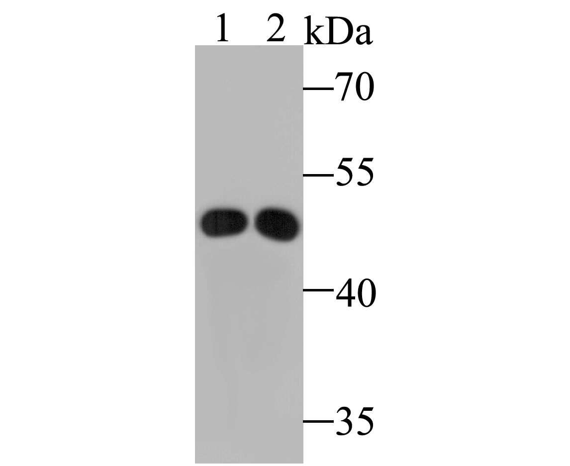 Western blot analysis of ABAT/GABA-T on different lysates. Proteins were transferred to a PVDF membrane and blocked with 5% BSA in PBS for 1 hour at room temperature. The primary antibody (ET7110-01, 1/500) was used in 5% BSA at room temperature for 2 hours. Goat Anti-Rabbit IgG - HRP Secondary Antibody (HA1001) at 1:5,000 dilution was used for 1 hour at room temperature.<br /> Positive control: <br /> Lane 1: Human liver tissue lysate<br /> Lane 2: Rat liver tissue lysate