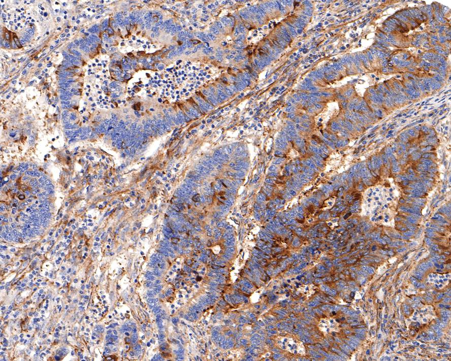 Flow cytometric analysis of BCL2L12 was done on A431 cells. The cells were fixed, permeabilized and stained with the primary antibody (ET7110-02, 1/50) (red). After incubation of the primary antibody at room temperature for an hour, the cells were stained with a Alexa Fluor 488-conjugated Goat anti-Rabbit IgG Secondary antibody at 1/1000 dilution for 30 minutes.Unlabelled sample was used as a control (cells without incubation with primary antibody; black).