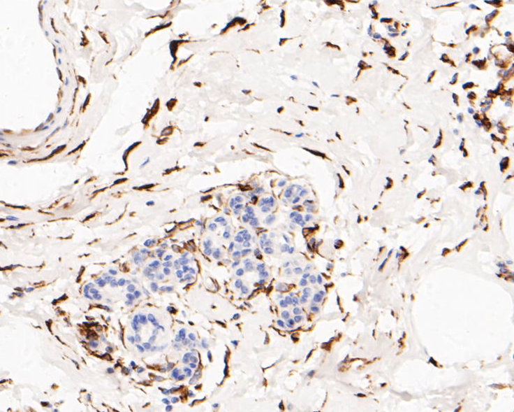 Immunohistochemical analysis of paraffin-embedded human breast tissue using anti-KAP1 (phospho S824) antibody. The section was pre-treated using heat mediated antigen retrieval with sodium citrate buffer (pH 6.0) for 20 minutes. The tissues were blocked in 5% BSA for 30 minutes at room temperature, washed with ddH2O and PBS, and then probed with the primary antibody (ET7110-11, 1/50)  for 30 minutes at room temperature. The detection was performed using an HRP conjugated compact polymer system. DAB was used as the chromogen. Tissues were counterstained with hematoxylin and mounted with DPX.