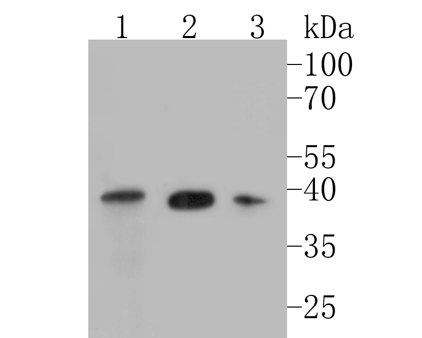 Western blot analysis of TIMM50 (Tim50) on different lysates. Proteins were transferred to a PVDF membrane and blocked with 5% BSA in PBS for 1 hour at room temperature. The primary antibody (ET7110-24, 1/500) was used in 5% BSA at room temperature for 2 hours. Goat Anti-Rabbit IgG - HRP Secondary Antibody (HA1001) at 1:5,000 dilution was used for 1 hour at room temperature.<br /> Positive control: <br /> Lane 1: A549 cell lysate<br /> Lane 2: K562 cell lysate<br /> Lane 3: MCF-7 cell lysate