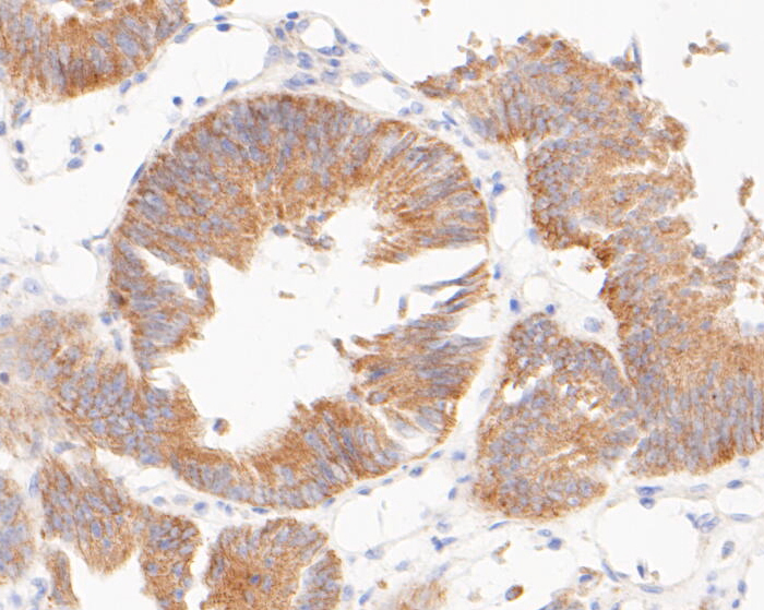Immunohistochemical analysis of paraffin-embedded human colon carcinoma tissue using anti-TIMM50 (Tim50) antibody. The section was pre-treated using heat mediated antigen retrieval with sodium citrate buffer (pH 6.0) for 20 minutes. The tissues were blocked in 5% BSA for 30 minutes at room temperature, washed with ddH2O and PBS, and then probed with the primary antibody (ET7110-24, 1/50)  for 30 minutes at room temperature. The detection was performed using an HRP conjugated compact polymer system. DAB was used as the chromogen. Tissues were counterstained with hematoxylin and mounted with DPX.