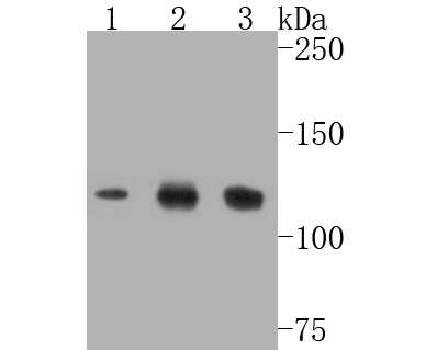 Western blot analysis of SIRT1 on different lysates. Proteins were transferred to a PVDF membrane and blocked with 5% BSA in PBS for 1 hour at room temperature. The primary antibody (ET7110-49, 1/500) was used in 5% BSA at room temperature for 2 hours. Goat Anti-Rabbit IgG - HRP Secondary Antibody (HA1001) at 1:5,000 dilution was used for 1 hour at room temperature.<br /> Positive control: <br /> Lane 1: Jurkat cell lysate<br /> Lane 2: HepG2 cell lysate<br /> Lane 3: Hela cell lysate