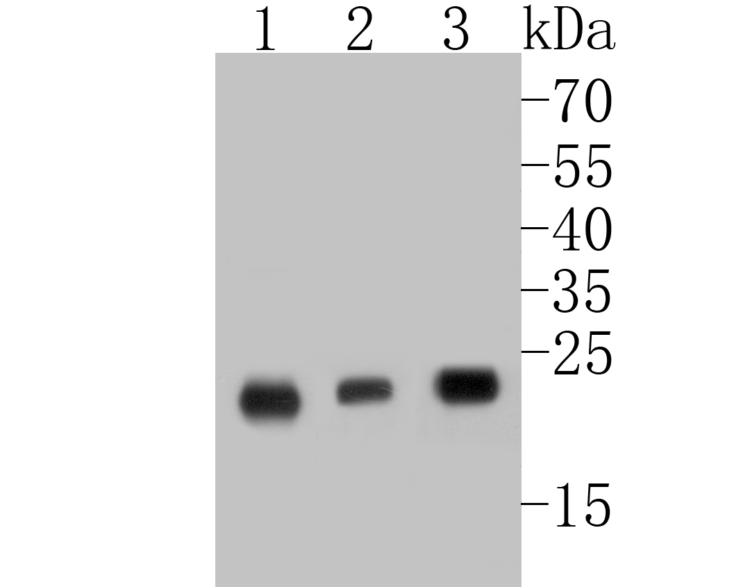 Western blot analysis of MGMT on different lysates. Proteins were transferred to a PVDF membrane and blocked with 5% BSA in PBS for 1 hour at room temperature. The primary antibody (ET7110-52, 1/500) was used in 5% BSA at room temperature for 2 hours. Goat Anti-Rabbit IgG - HRP Secondary Antibody (HA1001) at 1:5,000 dilution was used for 1 hour at room temperature.<br /> Positive control: <br /> Lane 1: MCF-7 cell lysate<br /> Lane 2: Daudi cell lysate<br /> Lane 3: SiHa cell lysate