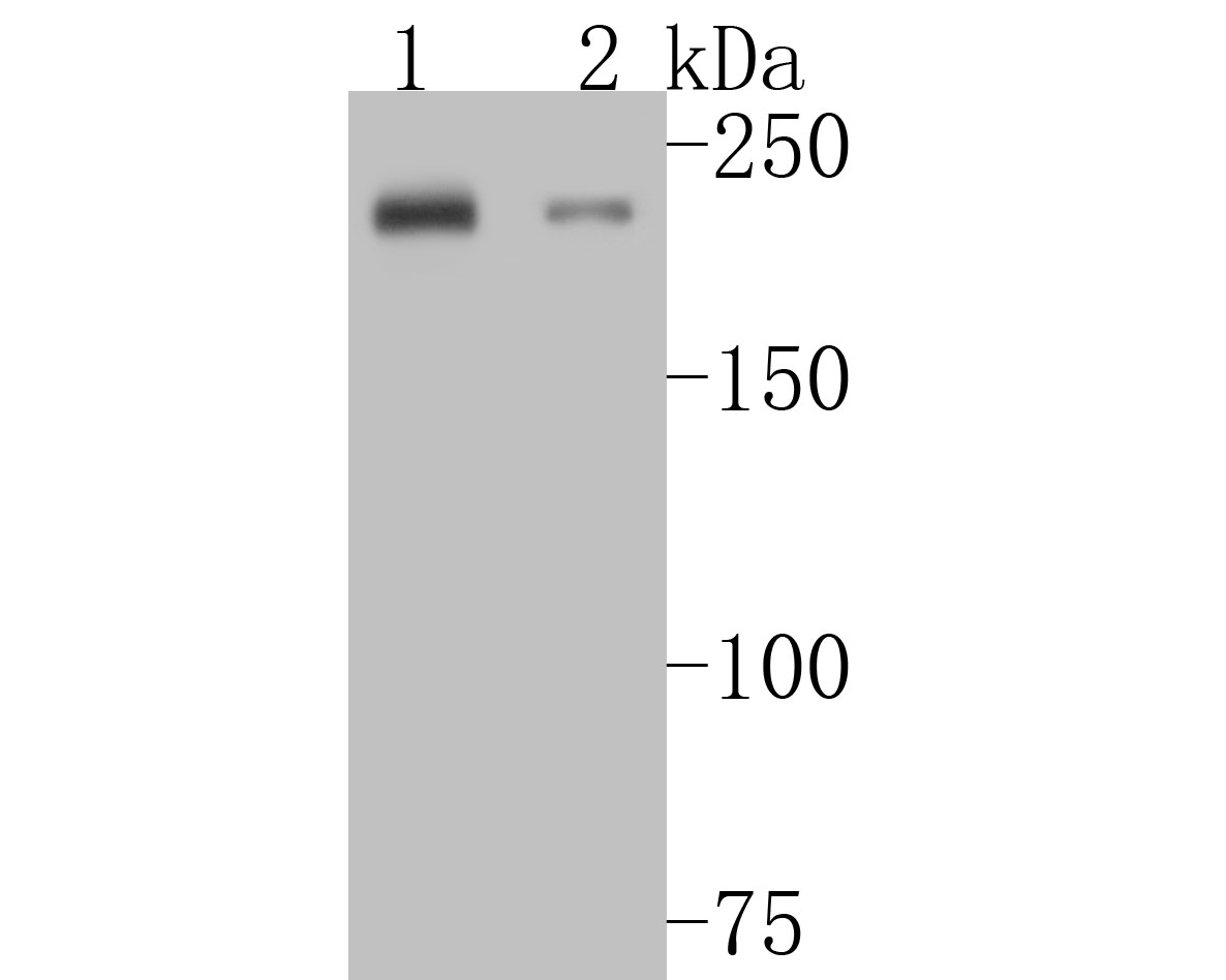 Western blot analysis of MYH7B on different lysates. Proteins were transferred to a PVDF membrane and blocked with 5% BSA in PBS for 1 hour at room temperature. The primary antibody (ET7110-69, 1/500) was used in 5% BSA at room temperature for 2 hours. Goat Anti-Rabbit IgG - HRP Secondary Antibody (HA1001) at 1:5,000 dilution was used for 1 hour at room temperature.<br /> Positive control: <br /> Lane 1: rat skeletal muscle tissue lysate<br /> Lane 2: rat heart tissue lysate