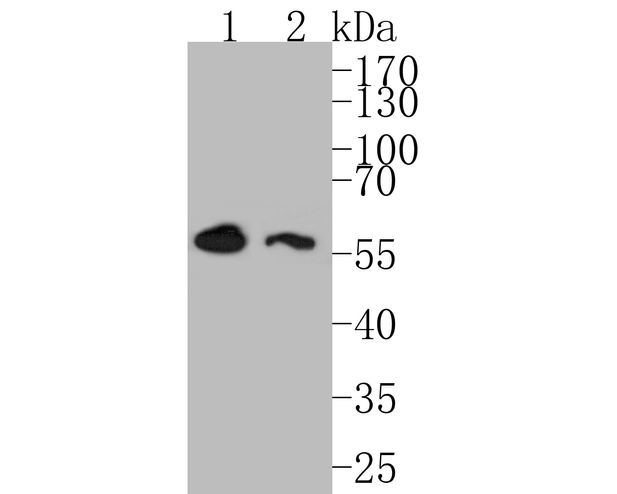 Western blot analysis of DOK1 on different lysates. Proteins were transferred to a PVDF membrane and blocked with 5% BSA in PBS for 1 hour at room temperature. The primary antibody (ET7110-75, 1/500) was used in 5% BSA at room temperature for 2 hours. Goat Anti-Rabbit IgG - HRP Secondary Antibody (HA1001) at 1:5,000 dilution was used for 1 hour at room temperature.<br /> Positive control: <br /> Lane 1: K562 cell lysate<br /> Lane 2: Rat skin tissue lysate