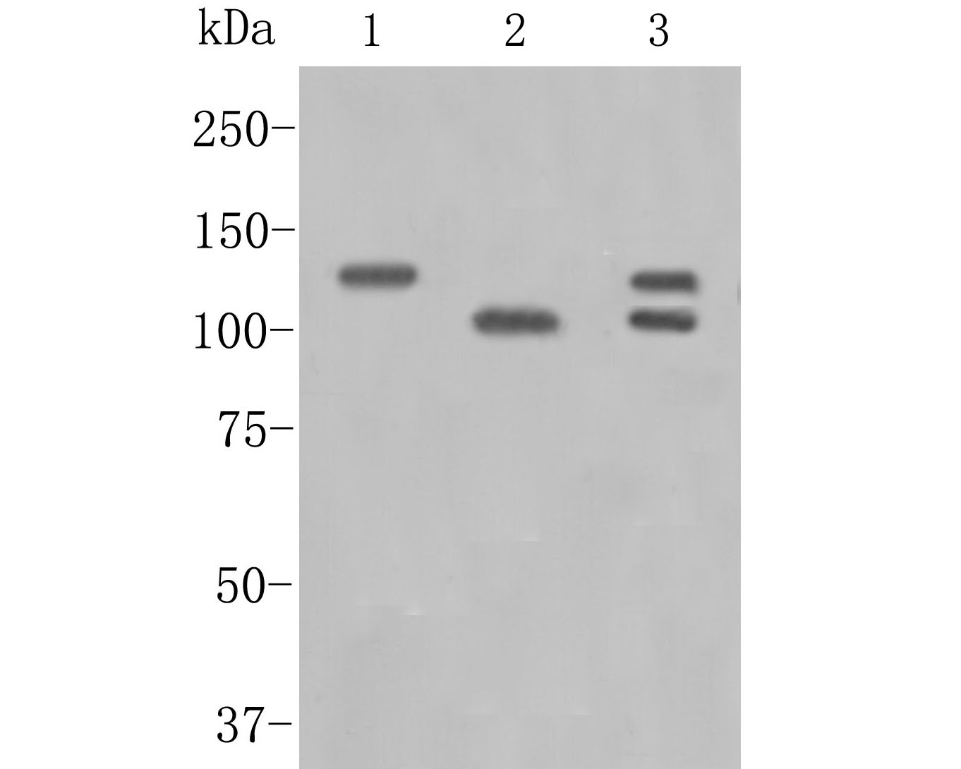 Western blot analysis of APLP2 on different lysates. Proteins were transferred to a PVDF membrane and blocked with 5% BSA in PBS for 1 hour at room temperature. The primary antibody (ET7110-78, 1/500) was used in 5% BSA at room temperature for 2 hours. Goat Anti-Rabbit IgG - HRP Secondary Antibody (HA1001) at 1:5,000 dilution was used for 1 hour at room temperature.<br /> Positive control: <br /> Lane 1: Rat brian tissue lysate<br /> Lane 2: Human placenta tissue lysate<br /> Lane 3: Hela cell lysate