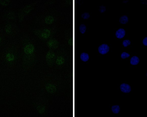 ICC staining of TEF1 in MG-63 cells (green). Formalin fixed cells were permeabilized with 0.1% Triton X-100 in TBS for 10 minutes at room temperature and blocked with 1% Blocker BSA for 15 minutes at room temperature. Cells were probed with the primary antibody (ET7111-04, 1/50) for 1 hour at room temperature, washed with PBS. Alexa Fluor®488 Goat anti-Rabbit IgG was used as the secondary antibody at 1/1,000 dilution. The nuclear counter stain is DAPI (blue).