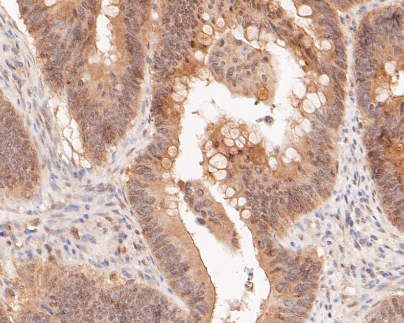 Immunohistochemical analysis of paraffin-embedded  rat skeletal muscle tissue using anti-TEF1 antibody. The section was pre-treated using heat mediated antigen retrieval with sodium citrate buffer (pH 6.0) for 20 minutes. The tissues were blocked in 5% BSA for 30 minutes at room temperature, washed with ddH2O and PBS, and then probed with the primary antibody (ET7111-04, 1/200)  for 30 minutes at room temperature. The detection was performed using an HRP conjugated compact polymer system. DAB was used as the chromogen. Tissues were counterstained with hematoxylin and mounted with DPX.