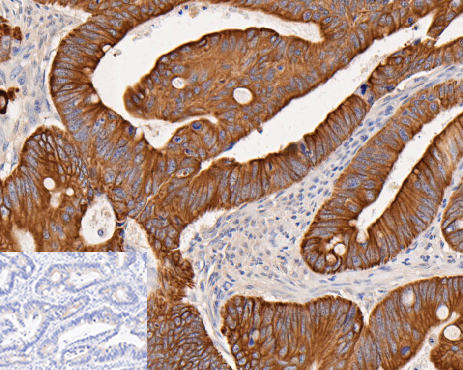 Immunohistochemical analysis of paraffin-embedded human Colorectal cancer tissue using rabbit anti-Cytokeratin 18 antibody.<br /> <br /> The section was pre-treated using heat mediated antigen retrieval with Tris-EDTA buffer (pH 8.0-8.4) for 20 minutes.The tissues were blocked in 5% BSA for 30 minutes at room temperature, washed with ddH2O and PBS, and then probed with the primary antibody (ET1603-8, 1/200 dilution) for 30 minutes at room temperature. Alpaca anti-rabbit IgG Fc, recombinant VHH (HRP) (HA1031, 1/200 dilution) was used for 30 min at room temperature. Tissues were counterstained with hematoxylin and mounted with DPX.<br /> <br /> The inset negative control image is secondary-only at 1/200 dilution.