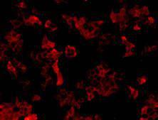 Immunofluorescent staining of Hela cells using anti-Neuropilin 1 Mouse mAb (Cat. # M0910-5).