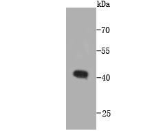 Western blot analysis of CCDC47 on recombinant protein using anti-CCDC47 antibody at 1/1,000 dilution.
