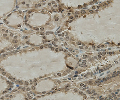 Immunohistochemical analysis of paraffin-embedded human thyroid tissue using anti-CCDC51 antibody. Counter stained with hematoxylin.