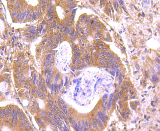 Immunohistochemical analysis of paraffin-embedded human colon cancer tissue using anti-C14orf93 antibody. Counter stained with hematoxylin.
