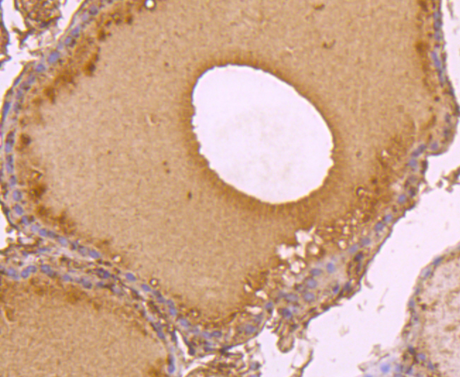 Immunohistochemical analysis of paraffin-embedded human thyroid tissue using anti-C14orf93 antibody. Counter stained with hematoxylin.