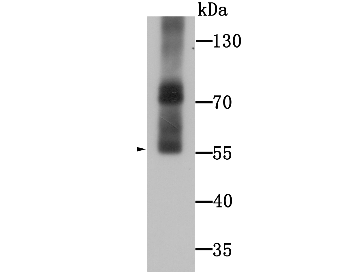 Western blot analysis of WSCD2 on human stomach tissue lysate using anti-WSCD2 antibody at 1/1000 dilution.