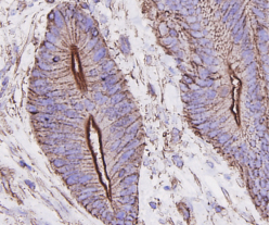Immunohistochemical analysis of paraffin-embedded human colon carcinoma tissue using anti-Beta-actin antibody. Counter stained with hematoxylin.