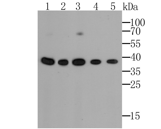 Western blot analysis of GAPDH on different cells lysates. Proteins were transferred to a PVDF membrane and blocked with 5% BSA in PBS for 1 hour at room temperature. The primary antibody (M1210-2, 1/1000) was used in 5% BSA at room temperature for 2 hours. Goat Anti-Mouse IgG - HRP Secondary Antibody (HA1006) at 1:5,000 dilution was used for 1 hour at room temperature.<br /> Positive control: <br /> Lane 1: Hela cell lysate<br /> Lane 2: A549 cell lysate<br /> Lane 3: HepG2 cell lysate<br /> Lane 4: PC-12 cell lysate<br /> Lane 5: F9 cell lysate
