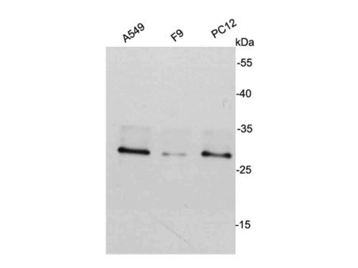 Western blot analysis on different cell lysates using anti- CDK2 mouse mAb.