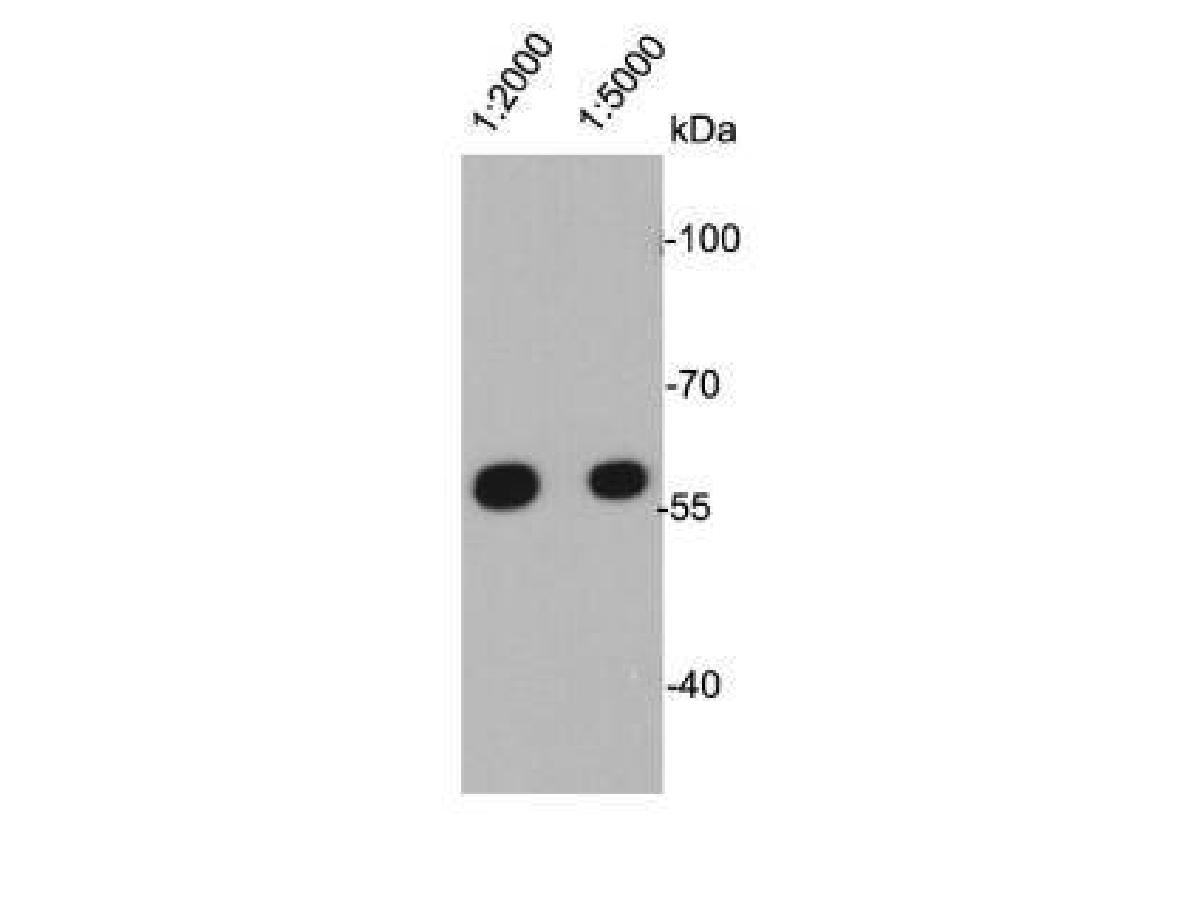 Western blot analysis on A431 cell lysates using anti- Vimentin mouse mAb in different dilution.