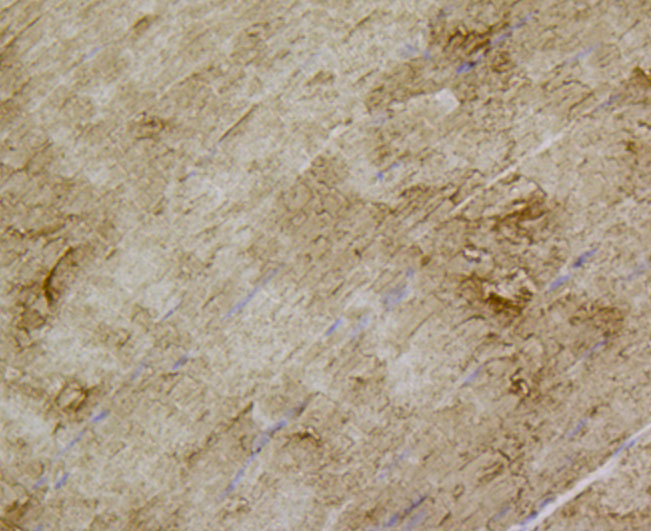 Immunohistochemical analysis of paraffin-embedded mouse skeletal muscle tissue using anti-Glucose Transporter GLUT4 antibody. The section was pre-treated using heat mediated antigen retrieval with Tris-EDTA buffer (pH 8.0-8.4) for 20 minutes.The tissues were blocked in 5% BSA for 30 minutes at room temperature, washed with ddH2O and PBS, and then probed with the antibody (M1505-6) at 1/100 dilution, for 30 minutes at room temperature and detected using an HRP conjugated compact polymer system. DAB was used as the chromogen. Counter stained with hematoxylin and mounted with DPX.