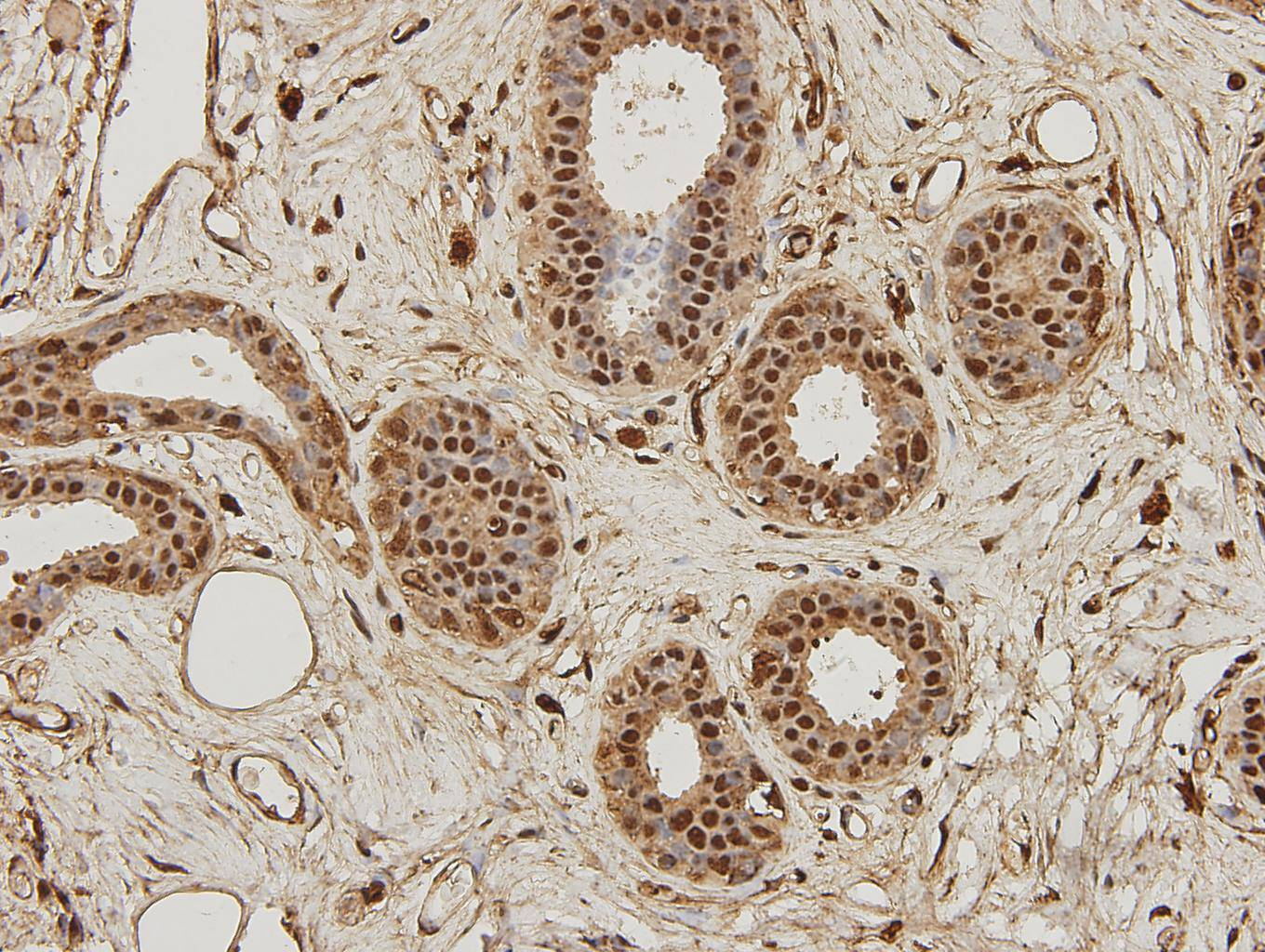 Immunohistochemical analysis of paraffin-embedded human breast carcinoma tissue using anti-NF-κB p105/p50 antibody. Counter stained with hematoxylin.